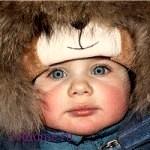 У ребенка аллергия на холод?  Несколько простых, но эффективных рекомендаций